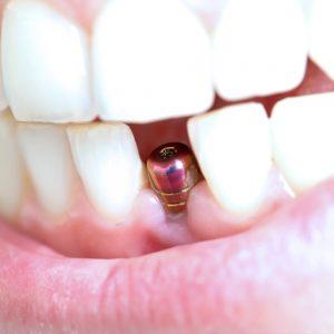 Dentaire au centre de santé Paris Est - Implatologie